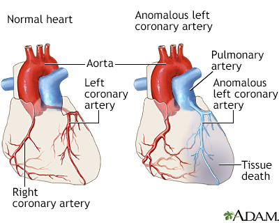 anomalous left coronary artery from the pulmonary artery, Human Body